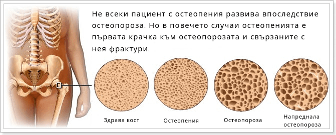 Osteopenia_osteoporoza